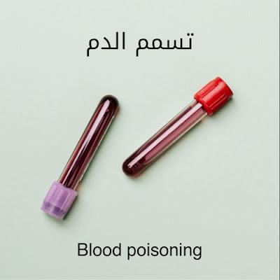 أعراض تسمم الدم والأسباب والخطورة
