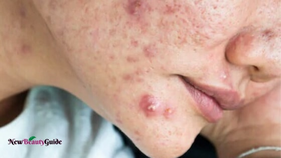 Cystic Acne: Causes, Symptoms, Prevention, Treatment & Home remedies