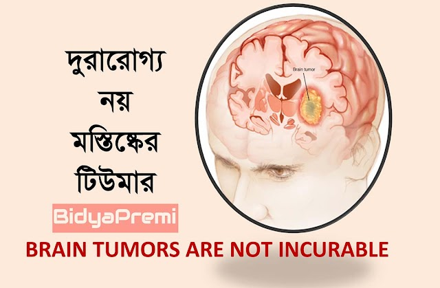 দুরারােগ্য নয় মস্তিষ্কের টিউমার (Brain tumors are not incurable)