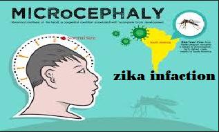 zika infection