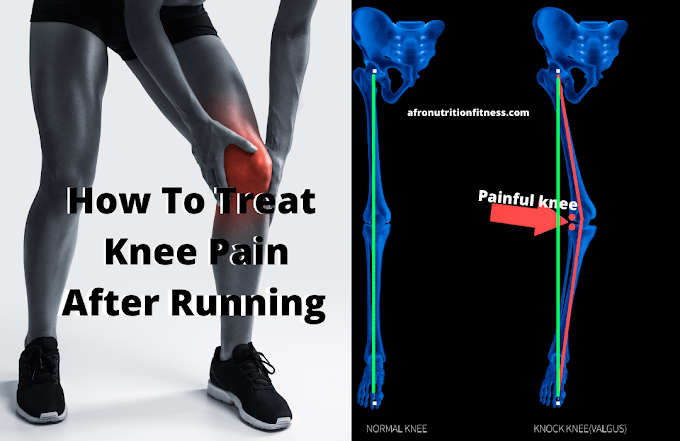 Knee Pain While Running? Here's 5 Keys To Treat Knee Pain After Running According To A PT