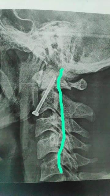 مستشفي سوهاج الجامعي تجري جراحة بالعمود الفقري لشاب بعد سقوطه من أعلي نخلة