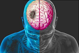 Gejala Penyebab serta cara mengobati penyakit stroke