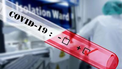 Dari Hasil Swab Test, 3 Orang Warga Bone Positif COVID-19