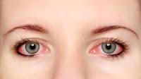 Penyebab Dan Cara Mengobati Mata Merah