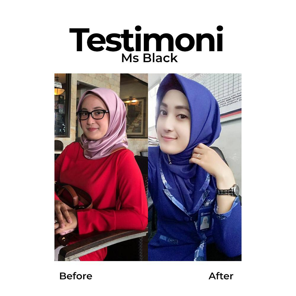 testimoni ms glow skin care