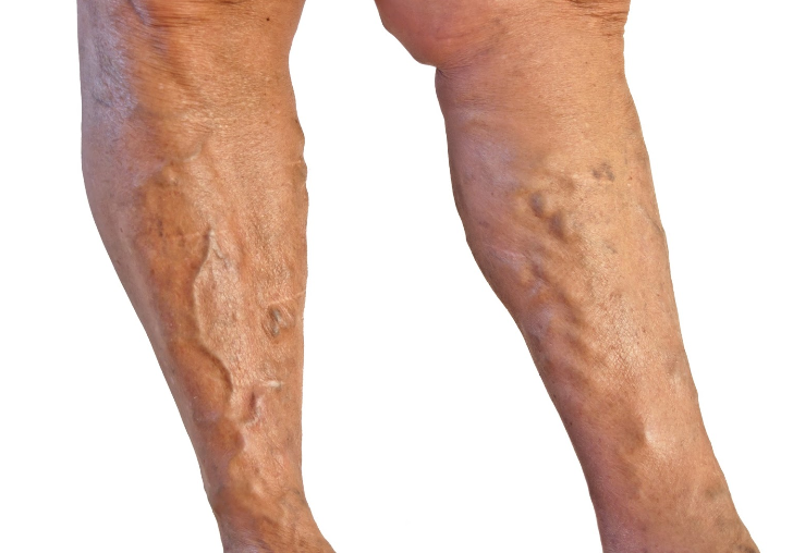 VARICOSE VEINS: CAUSES, SYMPTOMS AND NATURAL REMEDIES