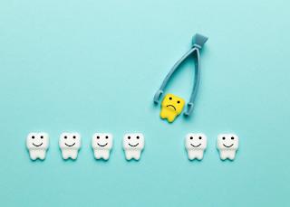 抜歯ワイヤー矯正患者が思う「マウスピース矯正」について