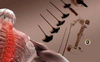 cirurgia e kit de cifoplastia plano saude cobertura reembolso