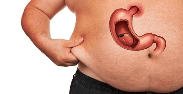 Sleeve Gastrektomi