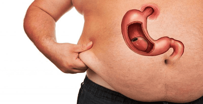 Mide Ameliyatı ve Sonrası (Sleeve Gastrektomi)