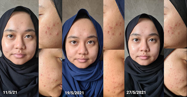 AXIS-Y Result in a month
