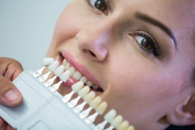 white spots on teeth white marks on teeth white stains on teeth calcium deposits on teeth decalcification teeth white spots on teeth after whitening white spots on teeth child