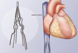 healthy life deep vein thrombosis