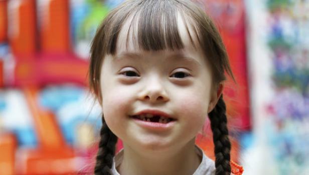 Mengenal Ciri Anak yang Lahir dengan Down Syndrome
