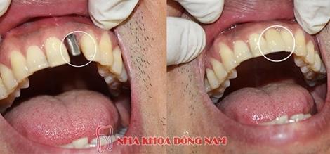 Cấy Implant ngay sau khi nhổ răng được không?