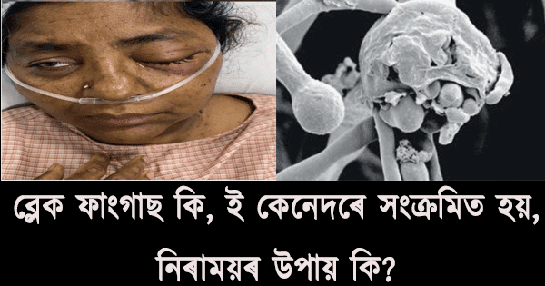 Black fungas in Assamese