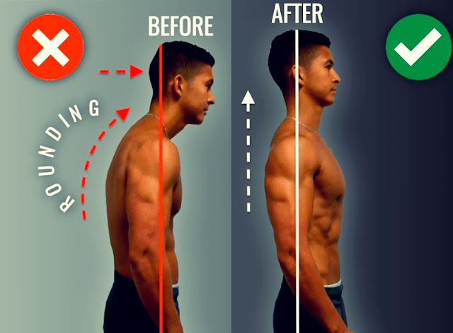 Exercises To Fix Rounded Shoulders Posture