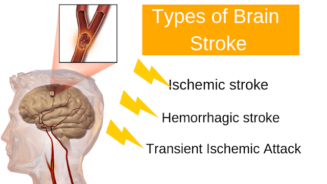 Brain Stroke can be classified into three types.