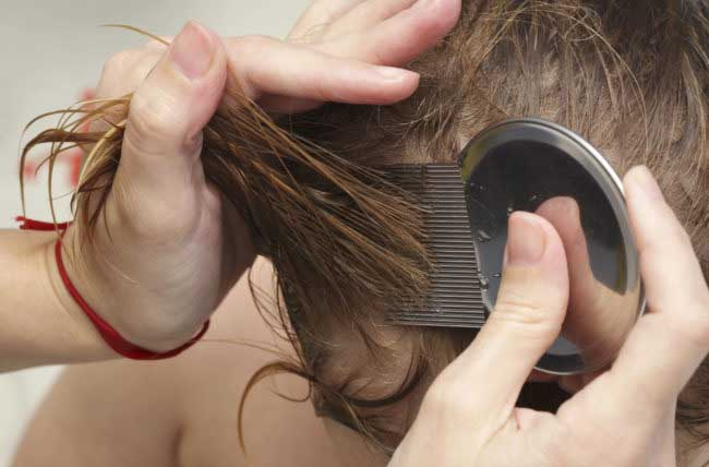 How to Remove Lice Eggs Quickly