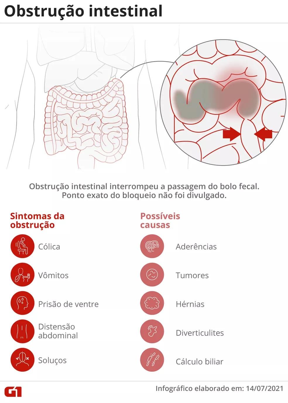 Presidente da República foi diagnosticado com obstrução após exames em Brasília. Problema ocorre quando há o bloqueio parcial ou completo da passagem das fezes pelo intestino.