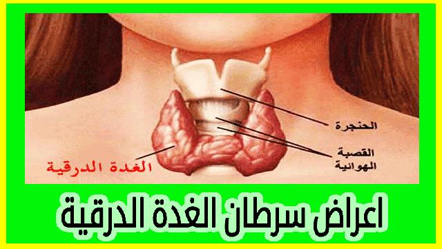 اعراض سرطان الغدة الدرقية