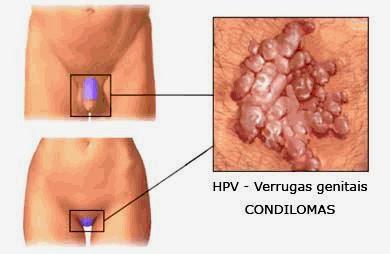 hpv ad alto rischio in gravidanza lungimea biciului