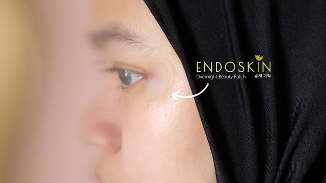 Cara memakai Endoskin Patch