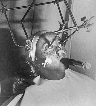 Remoção de sardas em 1930 - Sorriso na Web