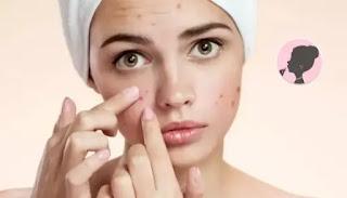 كيفية إزالة حب الشباب و آثاره من الوجه