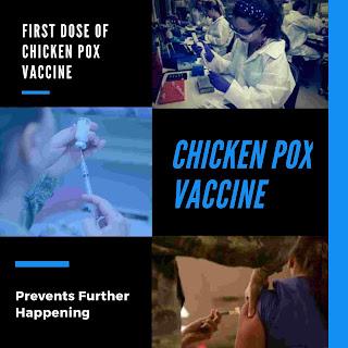 Why Chicken pox vaccine essential