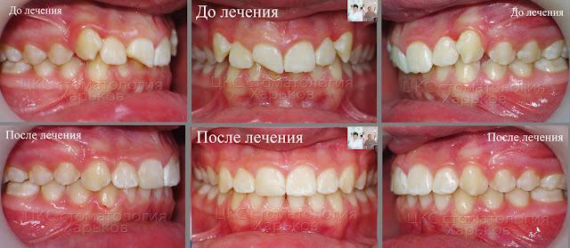 До и после ортодонтического лечения случая с переломом зуба