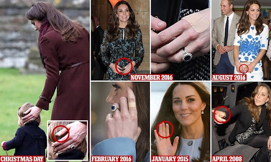 Why does the duchess always have a plaster on her hand? Clumsy Kate's catalogue of injuries to her perfectly manicured fingers