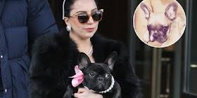 Lady Gaga Beri Rp 7,1 Miliar Untuk Wanita Misterius Penemu Dua Anjingnya