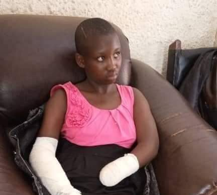 """He Cut Off My Hand With Machete For Resisting Rape Attempt"" – 16-Year-Old Student Narrates"