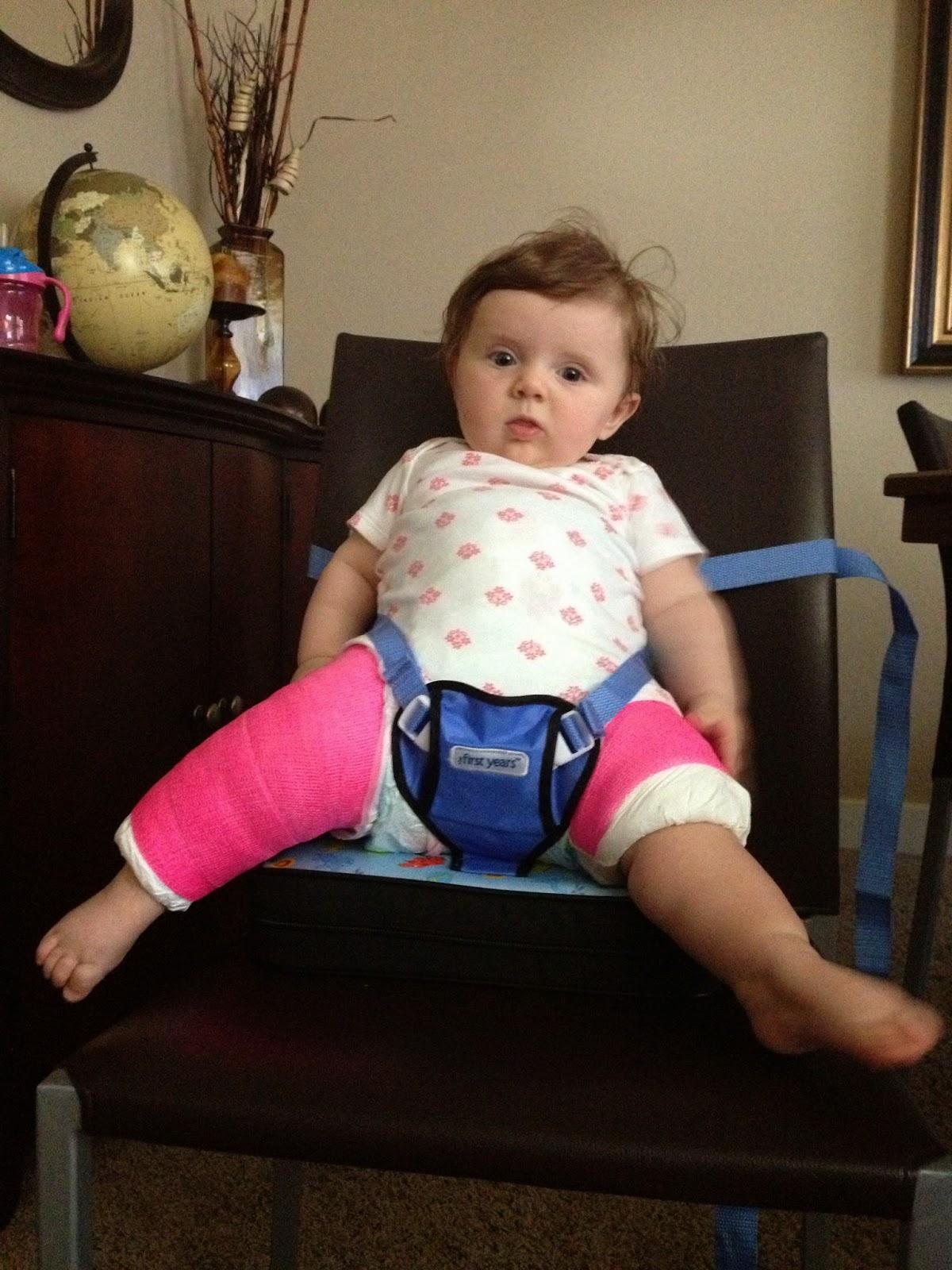 Rilynn S Hip Dysplasia Spica Cast Must Haves
