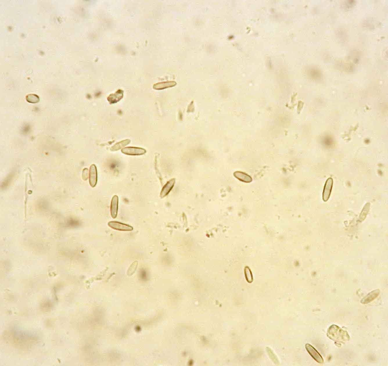 pale brown ellipsoid spores of Phaeocalicium polyporaeum
