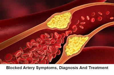 is a process in which the wall of your arteries becomes thickened by calcification Blocked Artery Symptoms, Diagnosis And Treatment