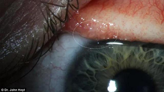 Sering Gatal, 14 Cacing Langka Menggeliat di Kelopak Mata Gadis Ini