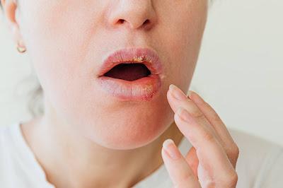 Mujer con dolor en el labio
