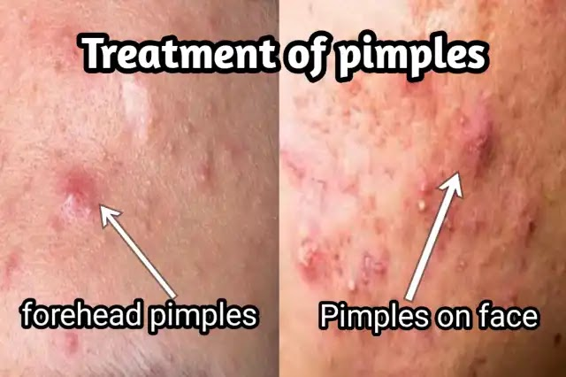 appearance of pimples on the face