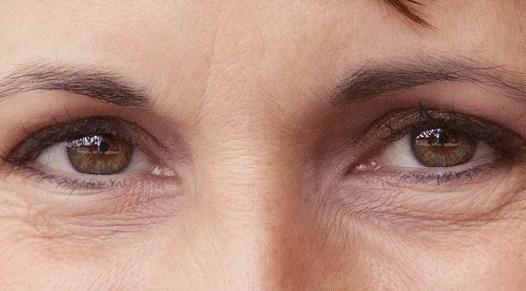 Cara Mudah Dan Cepat Menghilangkan Kerutan Dibawah Mata