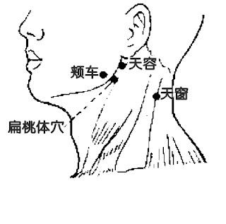 扁桃體穴位 | 扁桃體穴痛位置 - 穴道按摩經絡圖解 | Source:zhongyibaike.com
