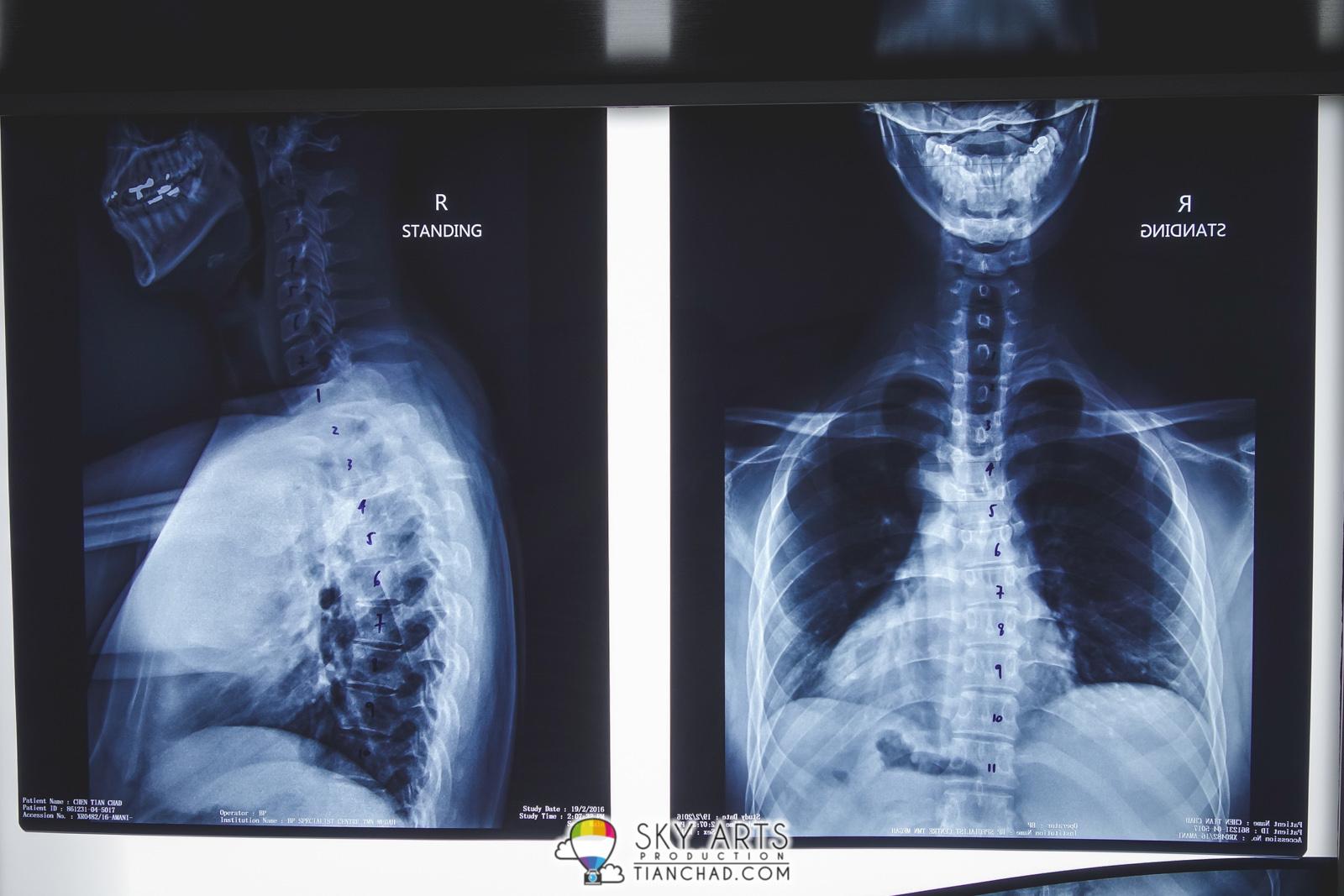 gonstead chiropracteur réparé mon mal de dos @ découvrir chiropractic chiropractic chiropractic ss 446676