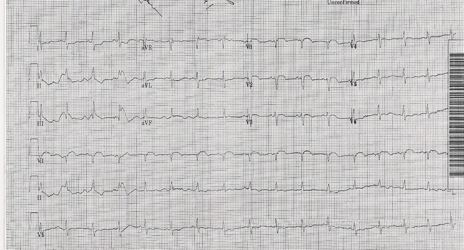 Ecgs For Ems May