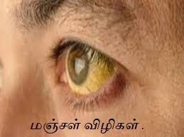 yellow eye for jaundice eyes