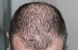 gambar Cara mengatasi rambut rontok berlebihan dengan bahan alami