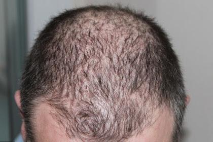 Cara mengatasi rambut rontok berlebihan dengan bahan alami