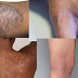 Eczema is not caused by dirtiness, see the real causes of eczema and treatment