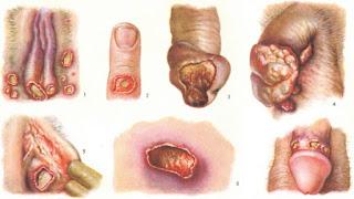 Cara Menyembuhkan Luka/Koreng Pada lubang Vagina